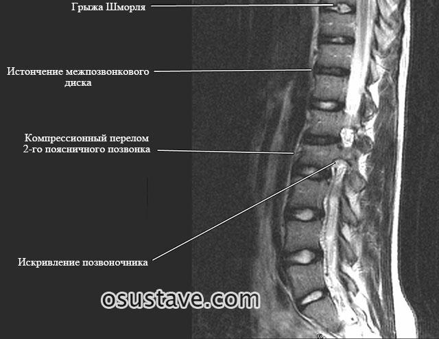 дегенеративно-дистрофические изменения позвоночника на МРТ