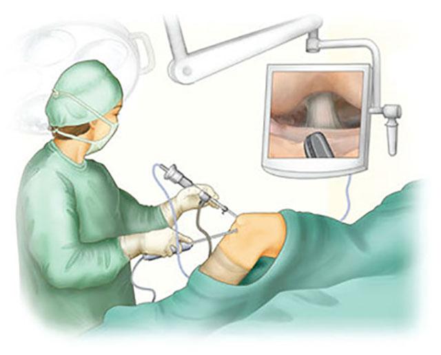 проведение артроскопии колена