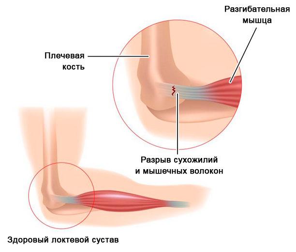 разрыв сухожилий и мышечных волокон локтевого сустава