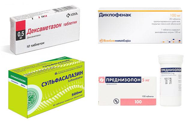 лекарственные препараты, применяемые для лечения сакроилеита
