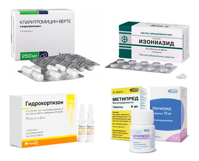 лекарственная терапия при сакроилеите