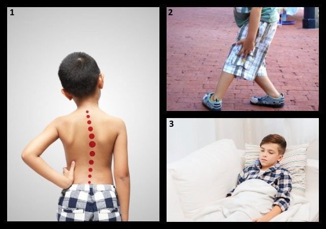 признаки сакроилеита у детей