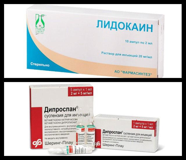 лидокаин, дипроспан
