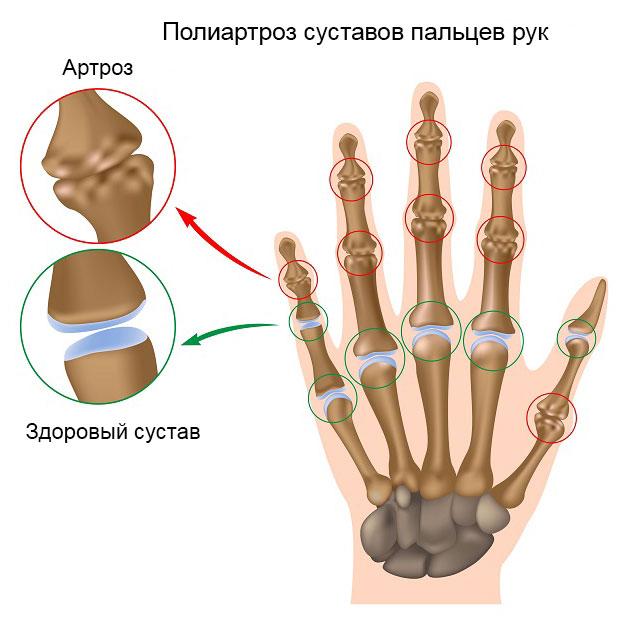 полиартроз суставов пальцев рук