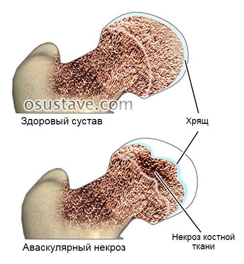 аваскулярный некроз