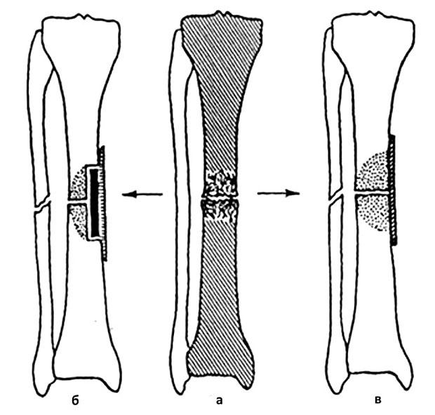 пересадка тканей при лечении больных с ложными суставами