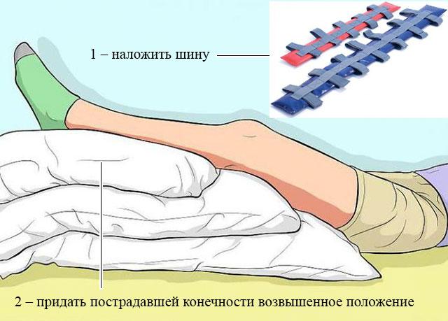 придание пострадавшей ноге возвышенного положения при помощи подушки