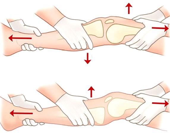 вправление вывиха коленного сустава
