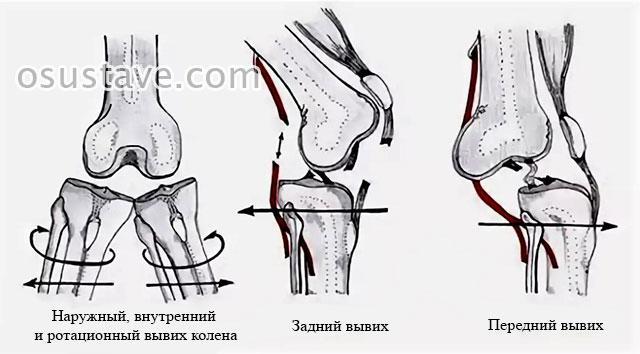 наружный, внутренний, ротационный, задний и передний вывихи коленного сустава