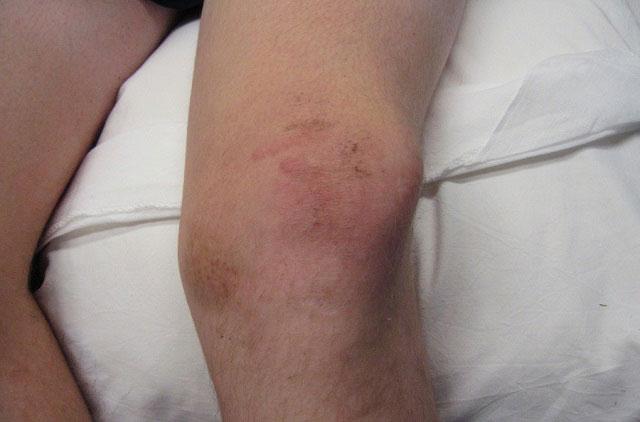 внешний вид колена при вывихе надколенника