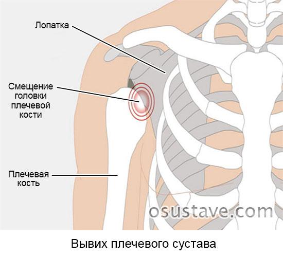 Вывих плечевого сустава лечение реабилитация