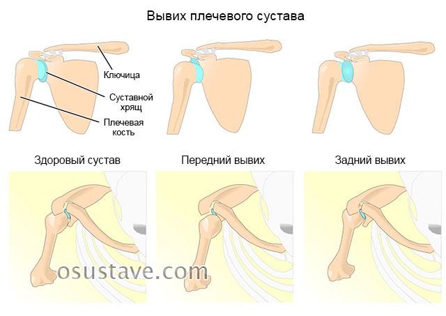 виды вывиха плечевого сустава