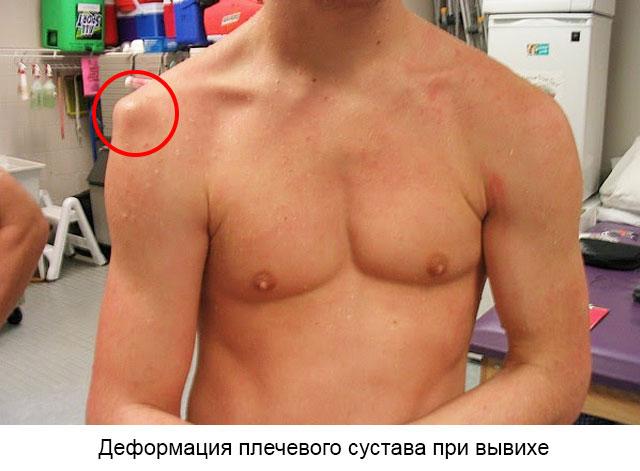 деформация плечевого сустава