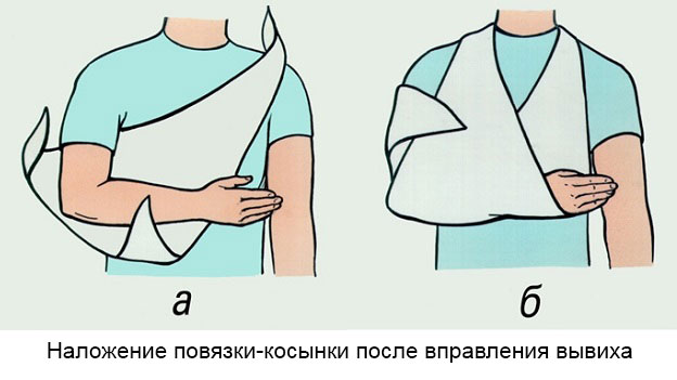 повязка-косынка на плечевой сустав