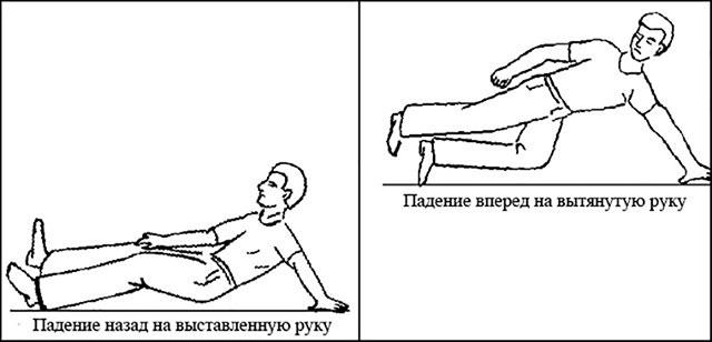 механизм вывихов плечевого сустава при падении на руку