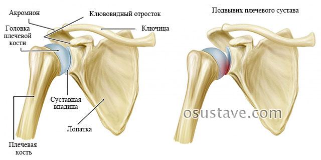 норма и подвывих плечевого сустава
