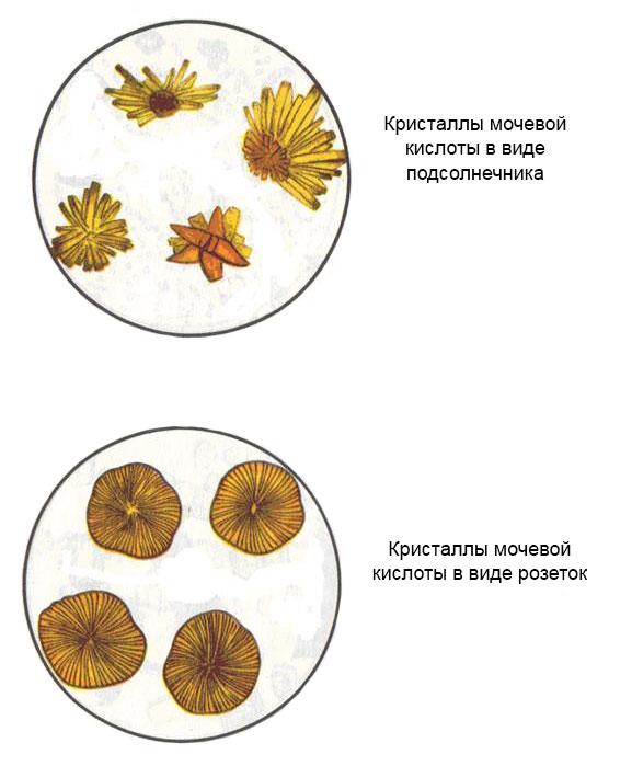 кристаллы мочевой кислоты