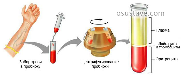 приготовление плазмы