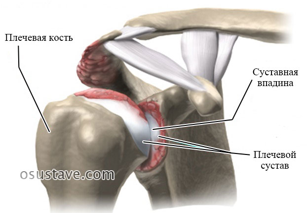 артрит плечевого сустава