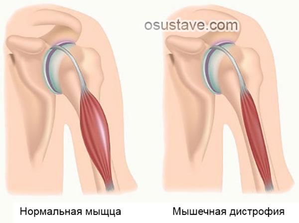 атрофия мышц рук