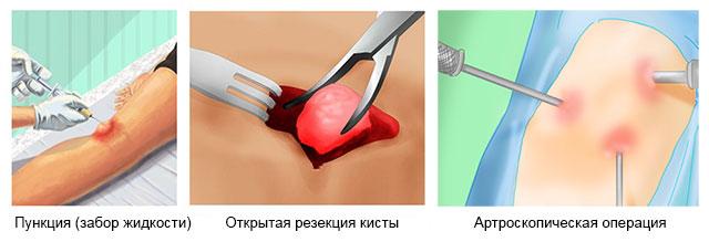 Удаление кисты бейкера коленного сустава: размеры для операции, виды, подготовка, ход операции, реабилитация