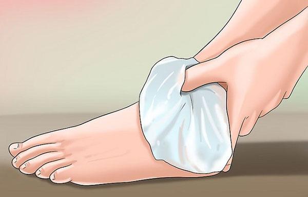 охлаждение голеностопа
