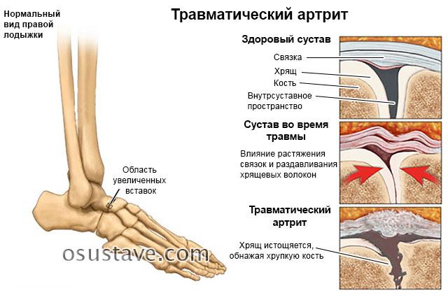 Артрит голеностопного сустава - симптомы и лечение воспаления