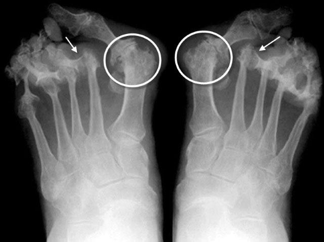 рентгенограмма стоп при ревматоидном артрите
