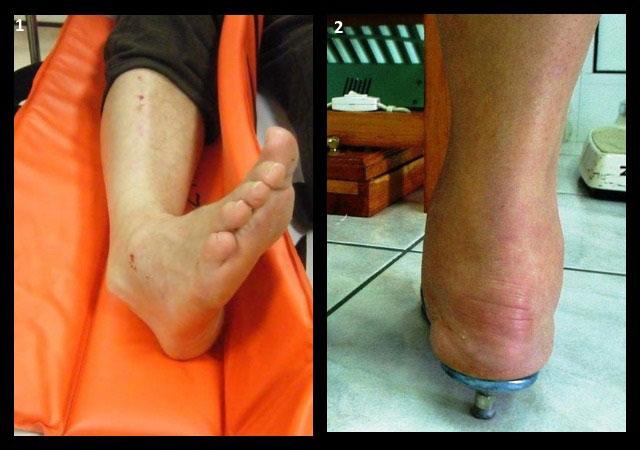 вывих голеностопного сустава, ревматоидный артрит