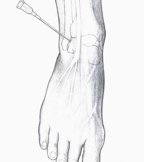 точка пункции голеностопного сустава