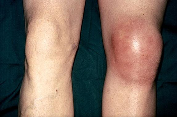 сильный отек коленного сустава и нормальное колено
