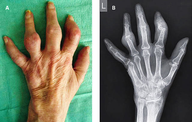 изменения суставов при подагре внешне и на рентген-снимке