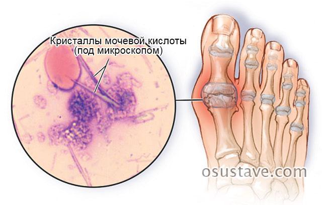 Препараты снижающие уровень мочевой кислоты при подагре