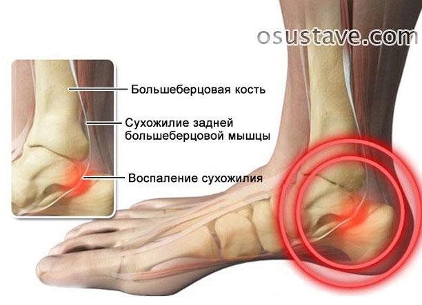 воспаление сухожилия стопы