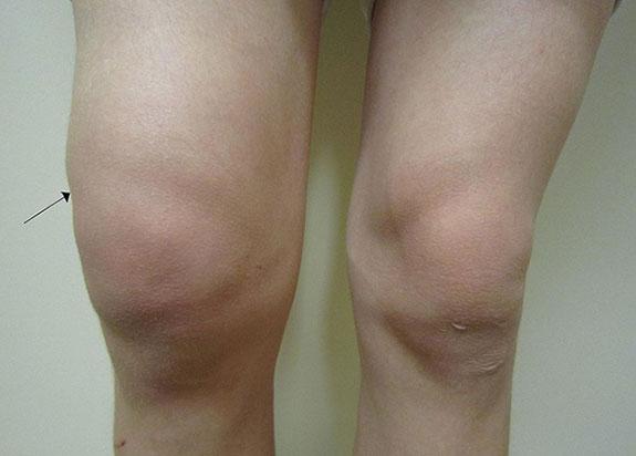 отек поврежденного колена