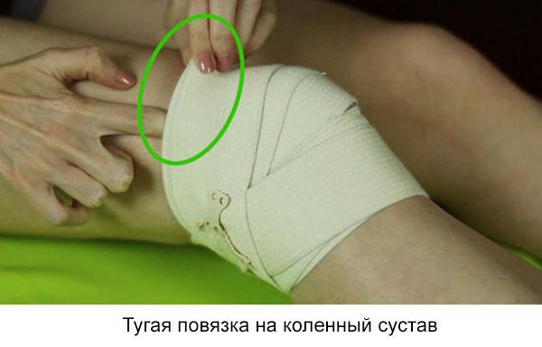 тугая повязка на колено