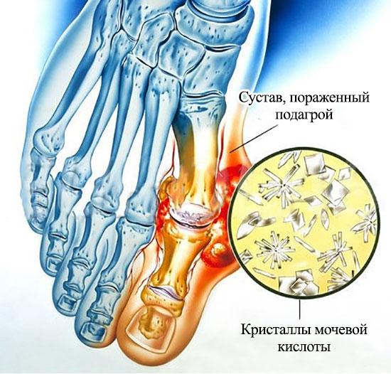 кристаллы мочевой кислоты при подагре