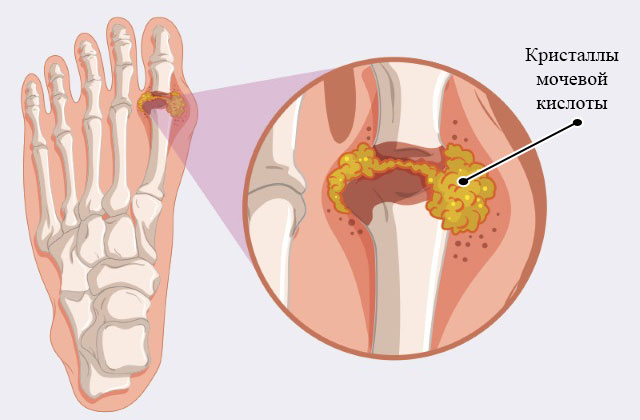отложение кристаллов мочевой кислоты в плюснефаланговом суставе большого пальца стопы