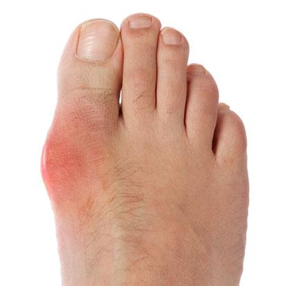 подагрический артрит большого пальца стопы