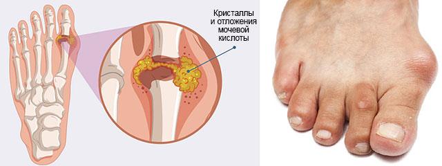 пораженный сустав большого пальца ноги