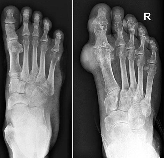 рентген здоровой ступни и пораженной подагрой
