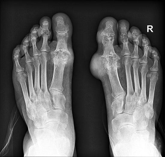 рентгеновский снимок, подагра на правой ноге