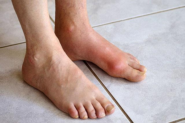 внешний вид подагры на левой ноге