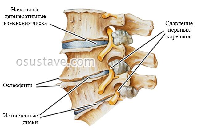 дегенеративно-дистрофические изменения позвоночника при остеохондрозе
