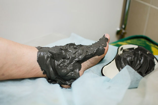 грязевая аппликация на голеностопный сустав