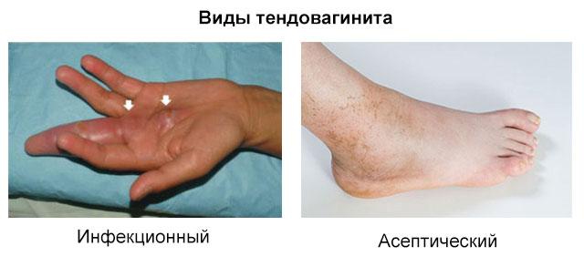 инфекционный и асептический тендовагинит