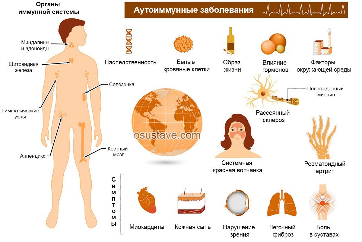 характеристика аутоиммунных заболеваний
