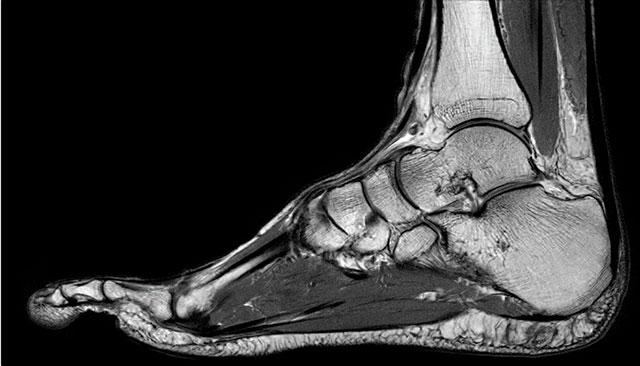 снимок МРТ голеностопного сустава на томографе мощностью 3 тесла