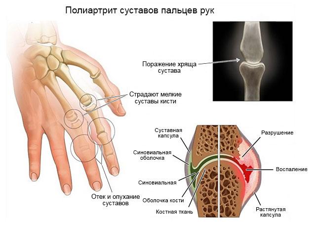 полиартрит суставов пальцев рук