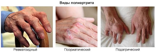 виды полиартрита на примере суставов кистей